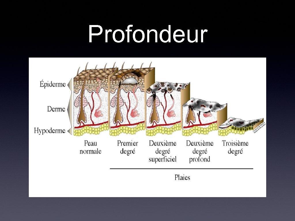 Profondeur