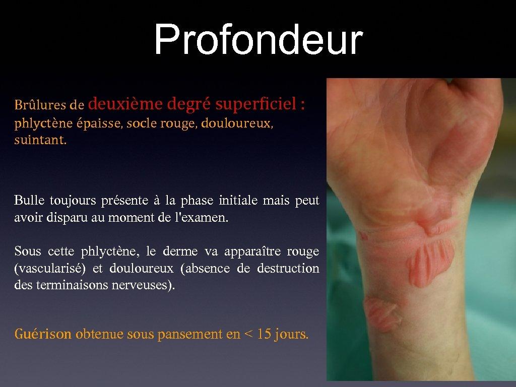 Profondeur Brûlures de deuxième degré superficiel : phlyctène épaisse, socle rouge, douloureux, suintant. Bulle