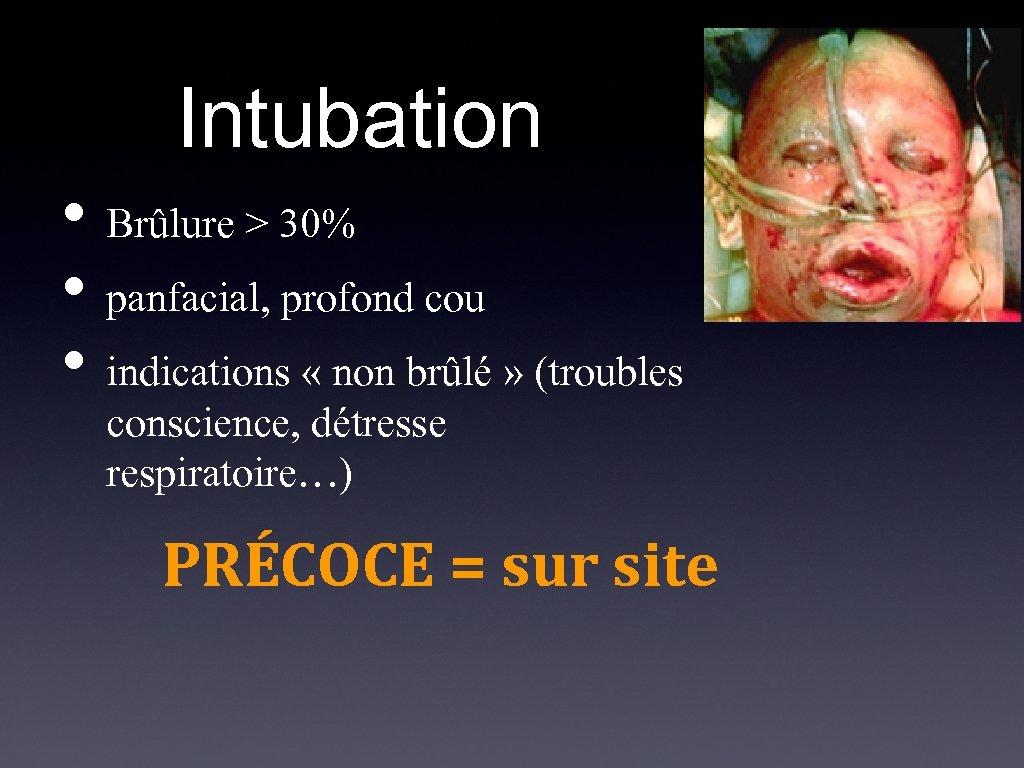 Intubation • Brûlure > 30% • panfacial, profond cou • indications « non brûlé