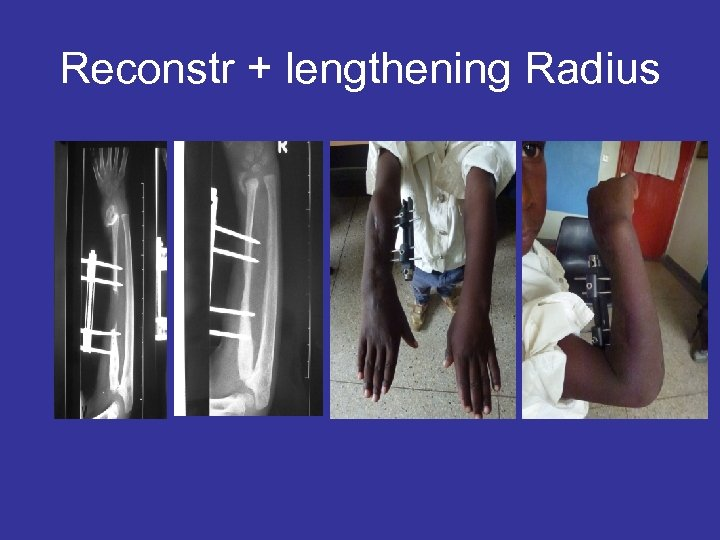Reconstr + lengthening Radius