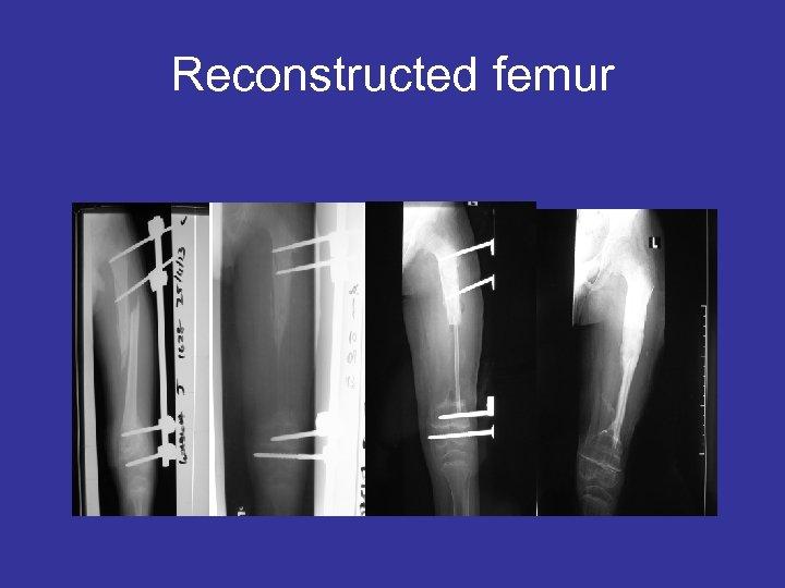 Reconstructed femur