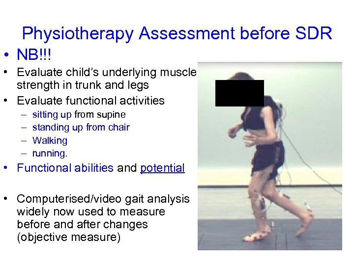 Physiotherapy Assessment before SDR • NB!!! • Evaluate child's underlying muscle strength in trunk