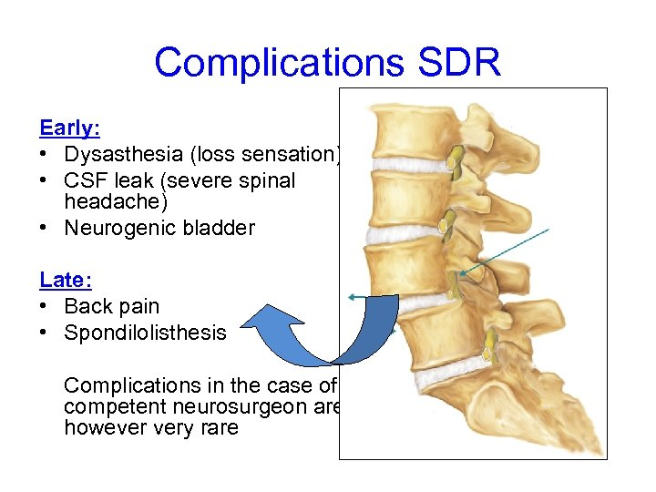Complications SDR Early: • Dysasthesia (loss sensation) • CSF leak (severe spinal headache) •