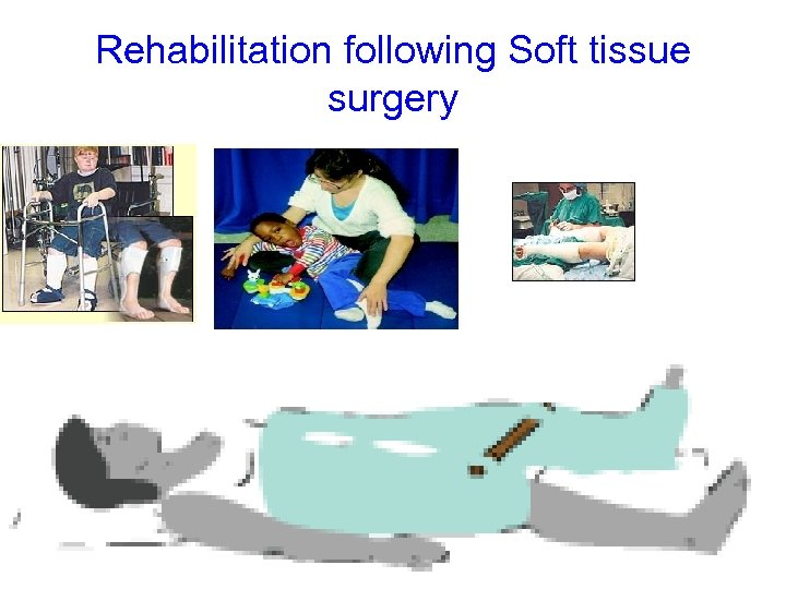 Rehabilitation following Soft tissue surgery