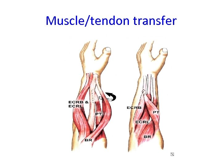 Muscle/tendon transfer