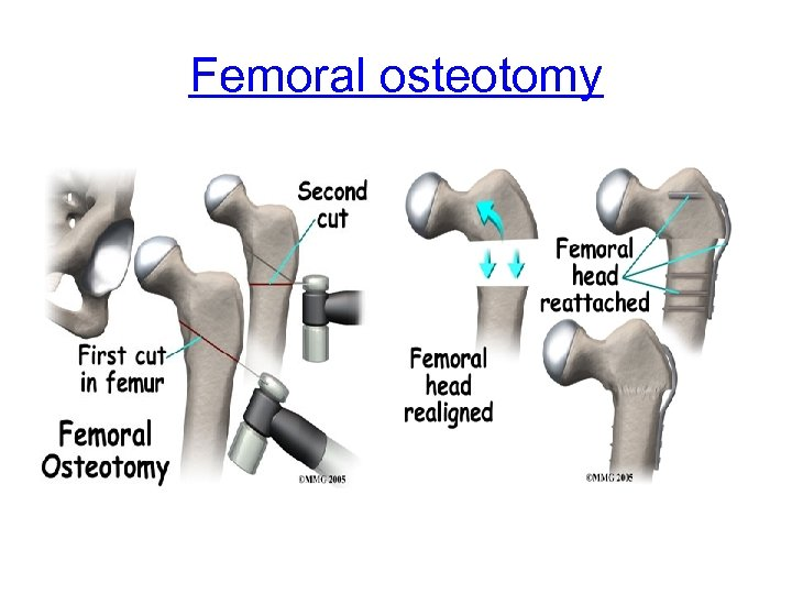 Femoral osteotomy