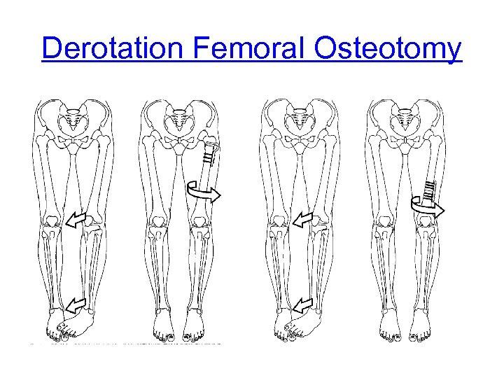 Derotation Femoral Osteotomy