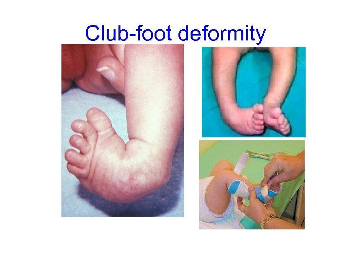 Club-foot deformity