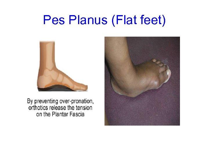 Pes Planus (Flat feet)