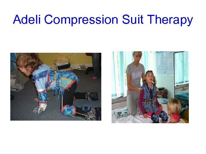 Adeli Compression Suit Therapy