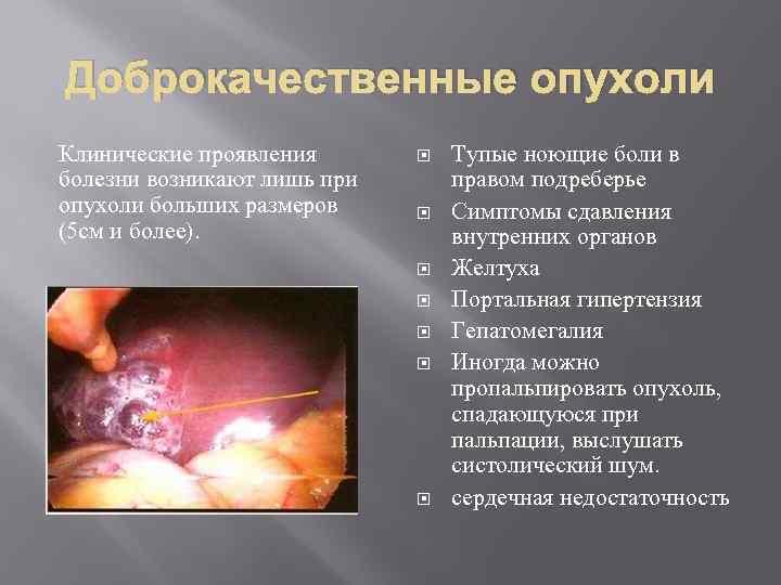 Доброкачественные опухоли Клинические проявления болезни возникают лишь при опухоли больших размеров (5 см и