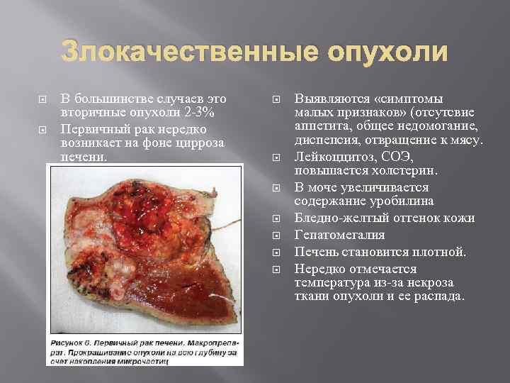 Злокачественные опухоли В большинстве случаев это вторичные опухоли 2 -3% Первичный рак нередко возникает