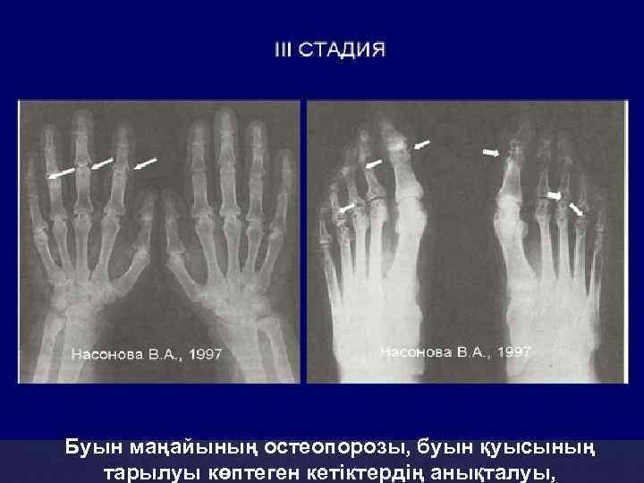 Буын маңайының остеопорозы, буын қуысының тарылуы көптеген кетіктердің анықталуы,