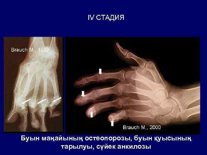 Буын маңайының остеопорозы, буын қуысының тарылуы, сүйек анкилозы