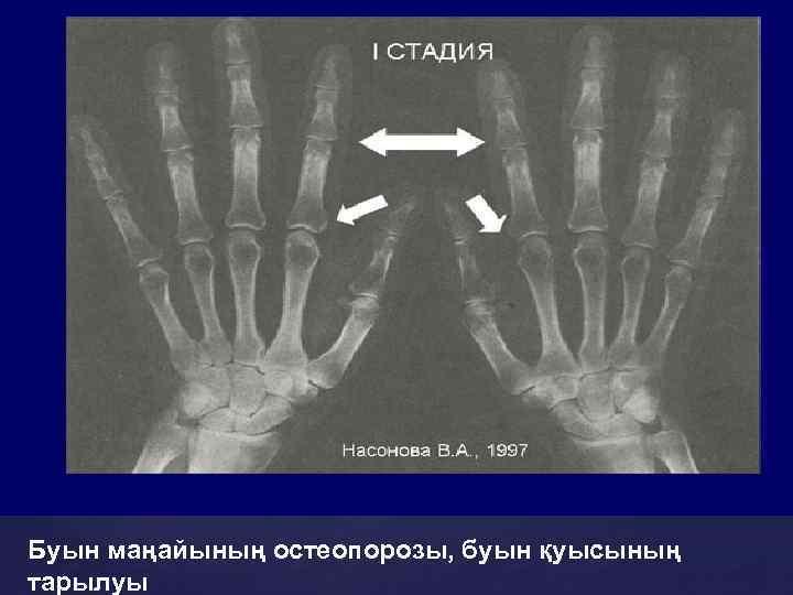 Буын маңайының остеопорозы, буын қуысының тарылуы