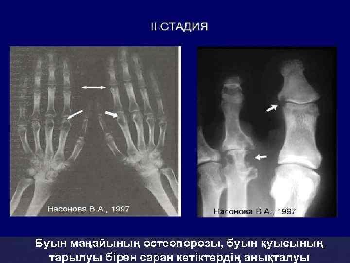 Буын маңайының остеопорозы, буын қуысының тарылуы бірен саран кетіктердің анықталуы