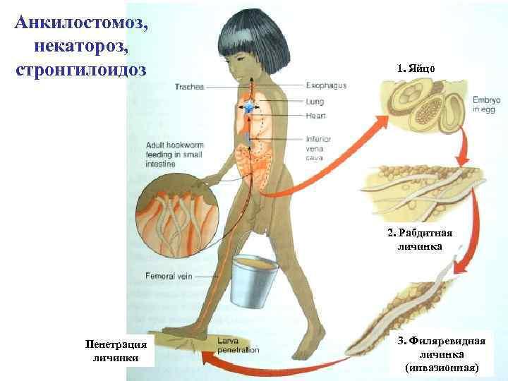 Анкилостомоз, некатороз, стронгилоидоз 1. Яйцо 2. Рабдитная личинка Пенетрация личинки 3. Филяревидная личинка (инвазионная)