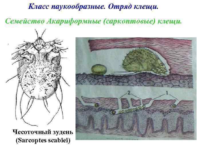 Класс паукообразные. Отряд клещи. Семейство Акариформные (саркоптовые) клещи. Чесоточный зудень (Sarcoptes scabiei)