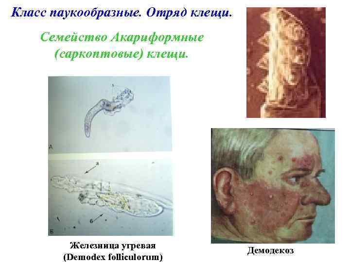 Класс паукообразные. Отряд клещи. Семейство Акариформные (саркоптовые) клещи. Железница угревая (Demodex folliculorum) Демодекоз