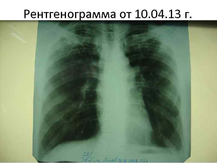 Рентгенограмма от 10. 04. 13 г.