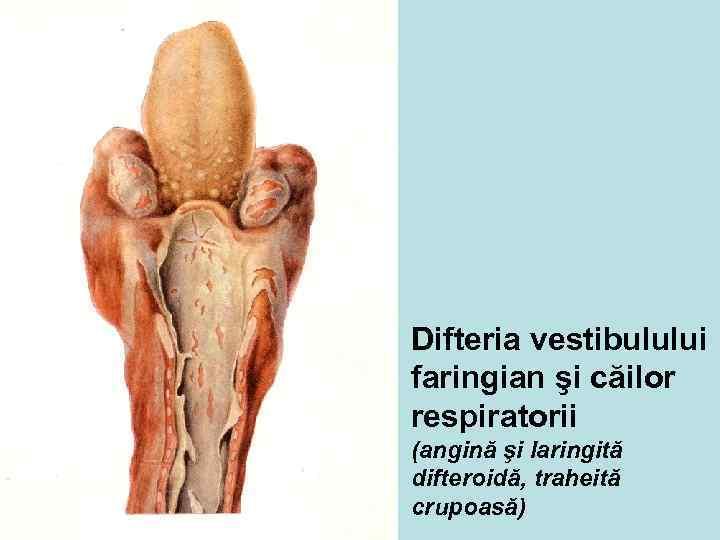 Difteria vestibulului faringian şi căilor respiratorii (angină şi laringită difteroidă, traheită crupoasă)