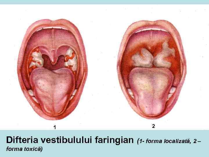 1 2 Difteria vestibulului faringian (1 - forma localizată, 2 – forma toxică)