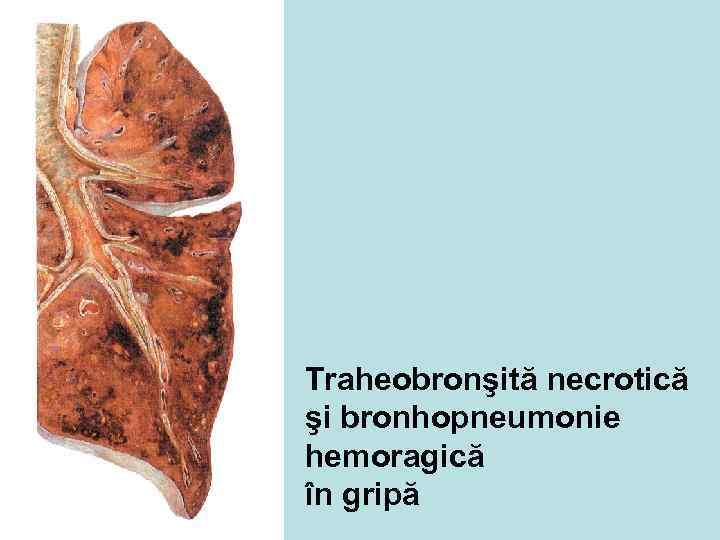 Traheobronşită necrotică şi bronhopneumonie hemoragică în gripă
