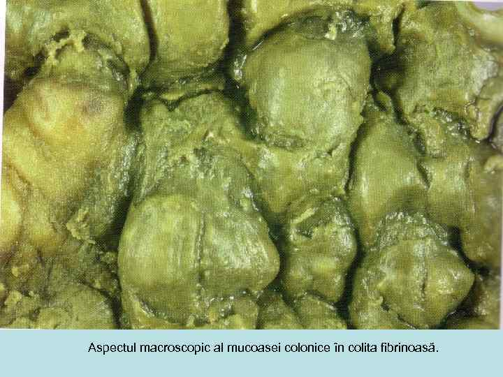 Aspectul macroscopic al mucoasei colonice în colita fibrinoasă.