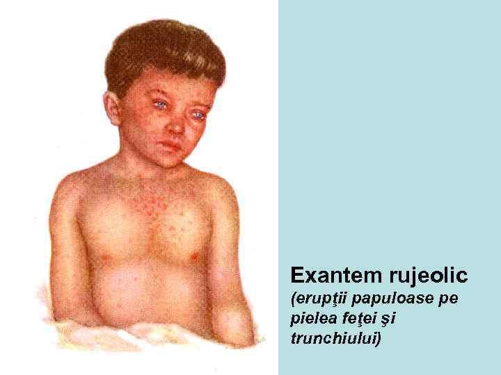 Exantem rujeolic (erupţii papuloase pe pielea feţei şi trunchiului)