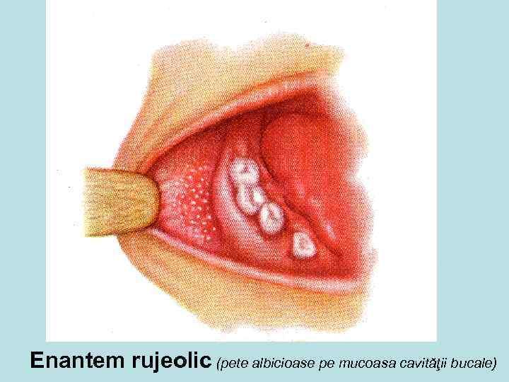 Enantem rujeolic (pete albicioase pe mucoasa cavităţii bucale)
