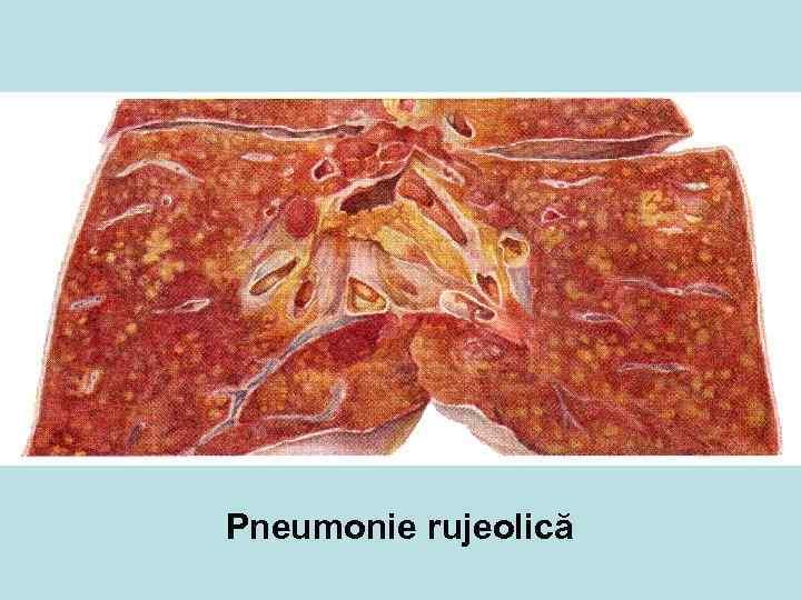 Pneumonie rujeolică