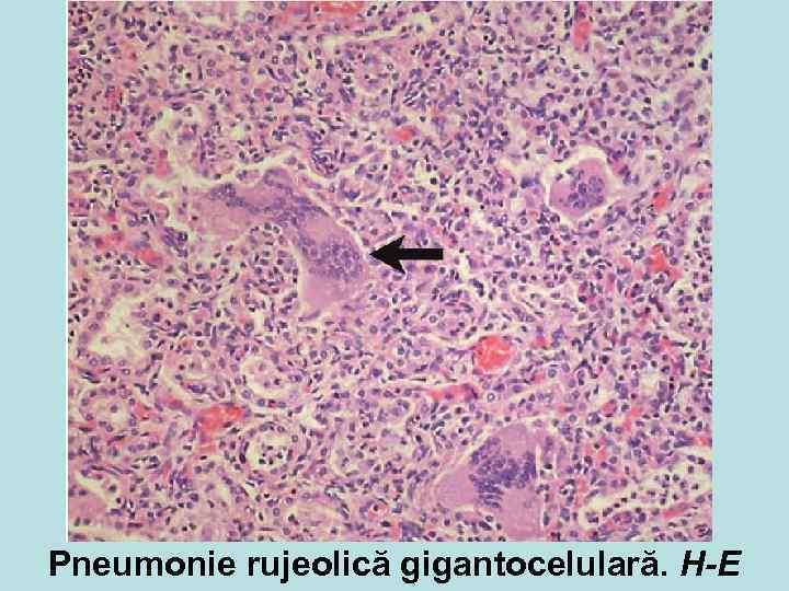Pneumonie rujeolică gigantocelulară. H-E
