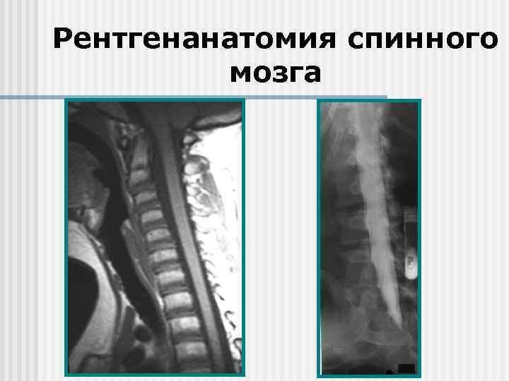 Рентгенанатомия спинного мозга