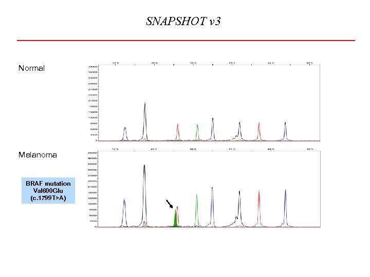SNAPSHOT v 3 Normal Melanoma BRAF mutation Val 600 Glu (c. 1799 T>A)