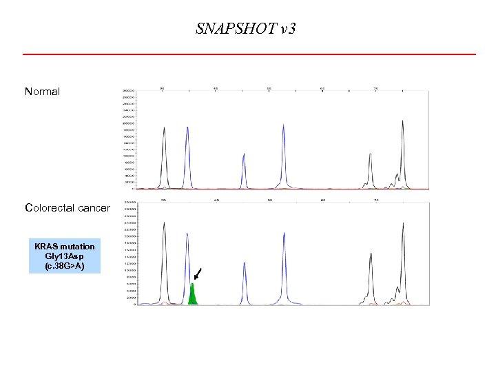 SNAPSHOT v 3 Normal Colorectal cancer KRAS mutation Gly 13 Asp (c. 38 G>A)