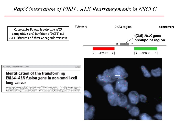 Rapid integration of FISH : ALK Rearrangements in NSCLC Crizotinib: Potent & selective ATP