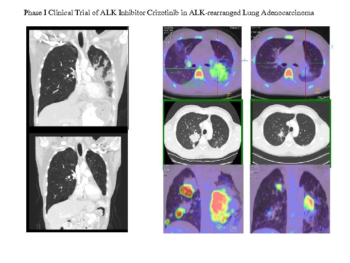 Phase I Clinical Trial of ALK Inhibitor Crizotinib in ALK-rearranged Lung Adenocarcinoma