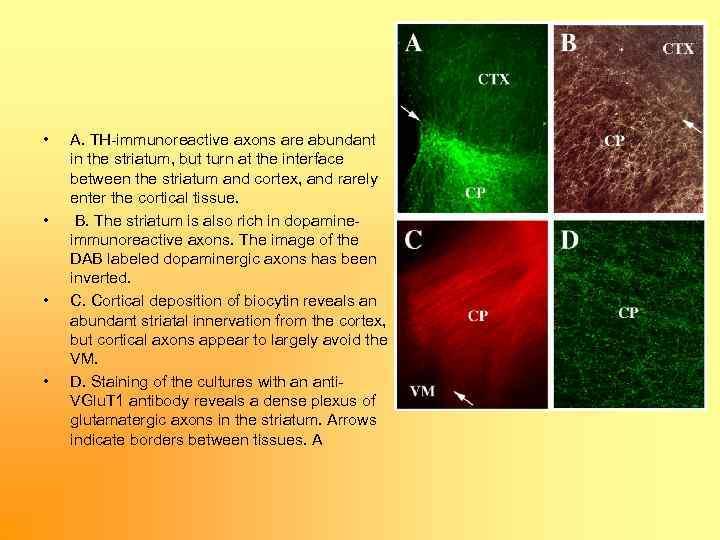 • • A. TH immunoreactive axons are abundant in the striatum, but turn