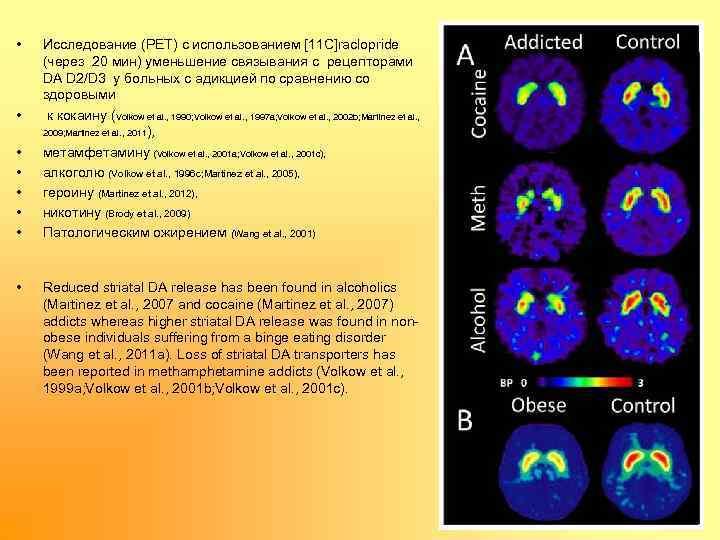 • • Исследование (PET) с использованием [11 C]raclopride (через 20 мин) уменьшение связывания
