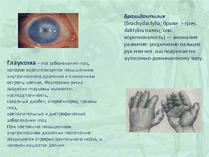 Глаукома – это заболевание глаз, которое характеризуется повышением внутриглазного давления и снижением остроты зрения.