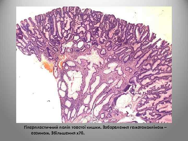 Гіперпластичний поліп товстої кишки. Забарвлення гематоксиліном – еозином. Збільшення х70.