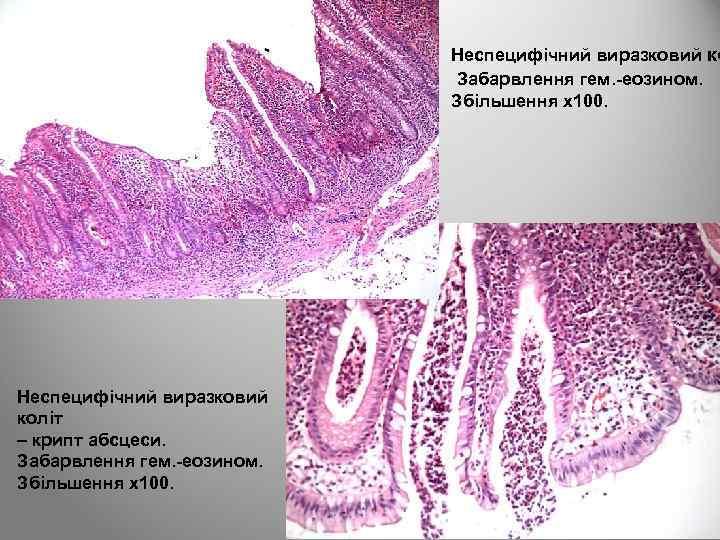 Неспецифічний виразковий ко Забарвлення гем. -еозином. Збільшення х100. Неспецифічний виразковий коліт – крипт абсцеси.