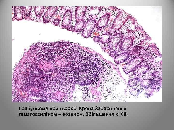 Гранульома при гворобі Крона. Забарвлення гематоксиліном – еозином. Збільшення х100.