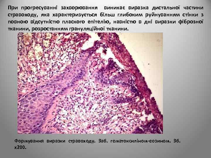 При прогресуванні захворювання виникає виразка дистальної частини стравоходу, яка характеризується більш глибоким руйнуванням стінки