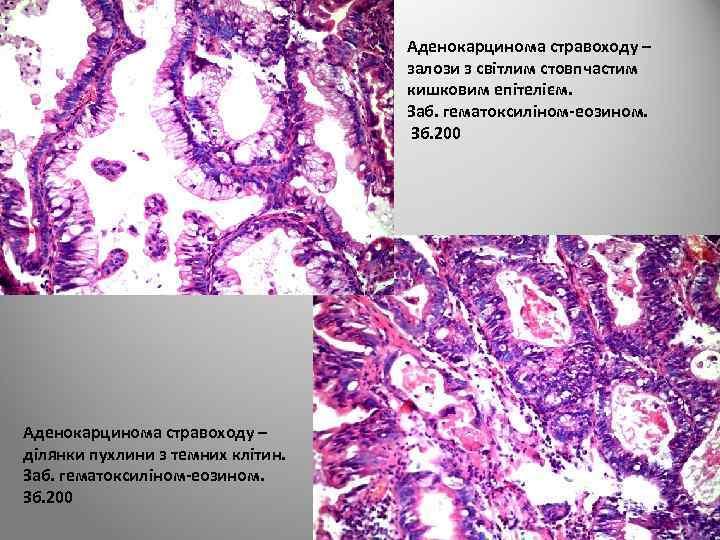 Аденокарцинома стравоходу – залози з світлим стовпчастим кишковим епітелієм. Заб. гематоксиліном-еозином. Зб. 200 Аденокарцинома