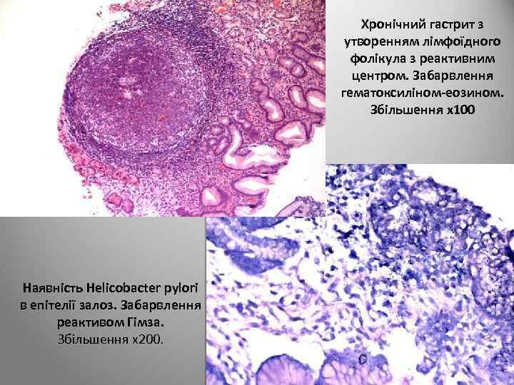Хронічний гастрит з утворенням лімфоїдного фолікула з реактивним центром. Забарвлення гематоксиліном-еозином. Збільшення х100 Наявність