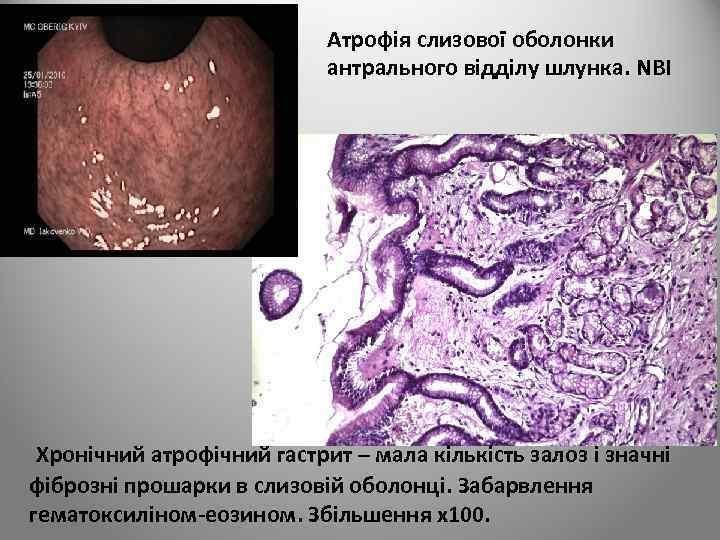 Атрофія слизової оболонки антрального відділу шлунка. NBI Хронічний атрофічний гастрит – мала кількість залоз