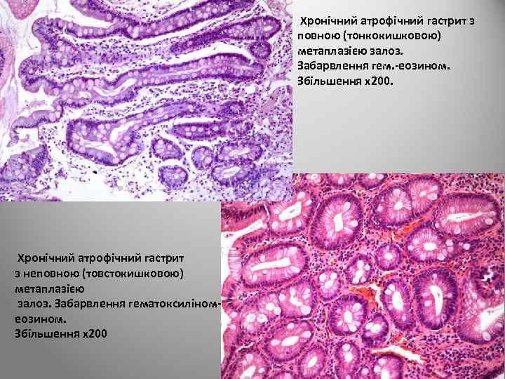Хронічний атрофічний гастрит з повною (тонкокишковою) метаплазією залоз. Забарвлення гем. -еозином. Збільшення х200.