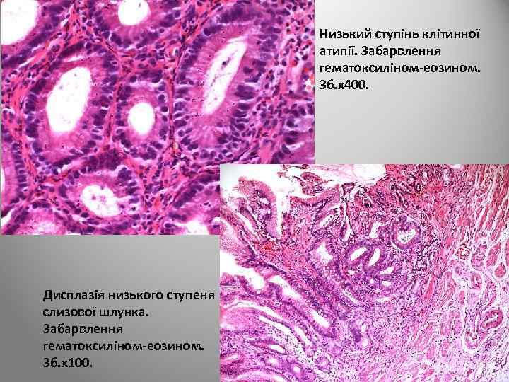 Низький ступінь клітинної атипії. Забарвлення гематоксиліном-еозином. Зб. х400. Дисплазія низького ступеня слизової шлунка. Забарвлення