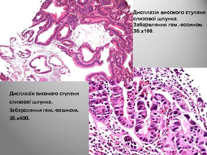 Дисплазія високого ступеня слизової шлунка. Забарвлення гем. -еозином. Зб. х100. Дисплазія високого ступеня слизової
